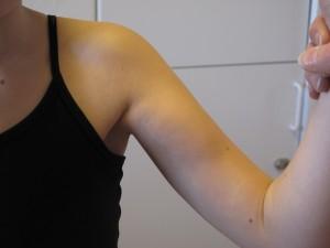 lilla bröstmuskeln