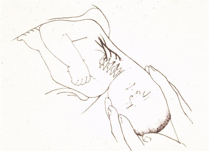 förlossningsskadan