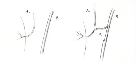 nervtransfer