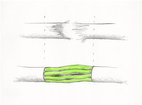nervtransplant