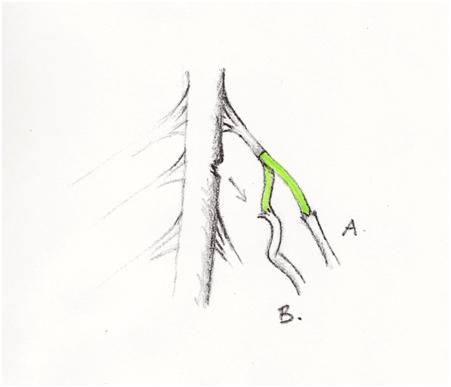 spinalnervstransfer